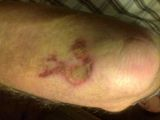 Schürfwunde am Arm nach Fahrradunfall